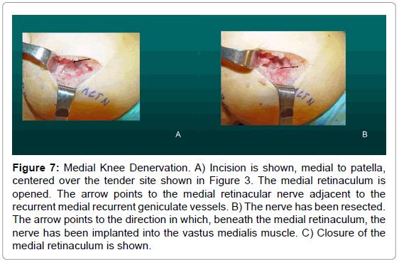 sports-medicine-doping-studies-medial-knee-denervation