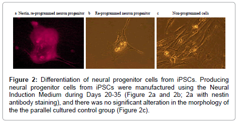 stem-cell-research-neural-progenitor