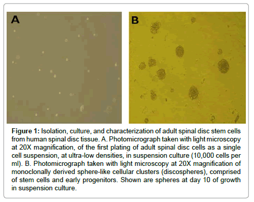 stem-cell-research-spinal-disc-tissue