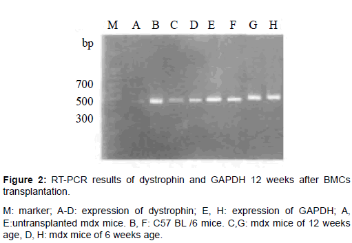 stem-cell-research-therapy-PCR-results-dystrophin