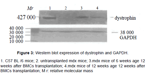 stem-cell-research-therapy-Western-blot-expression