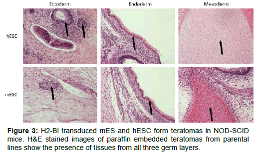 stem-cell-research-therapy-paraffin-embedded-teratomas
