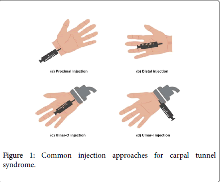 steroids-hormonal-science-carpal-tunnel