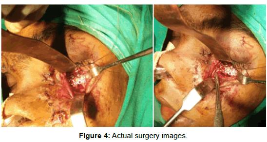 surgery-actual-surgery-images