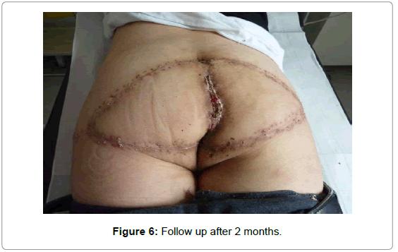 surgery-after-2-months