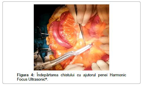 surgery-ajutorul-penei