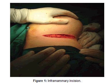 surgery-current-Inframammary-incision