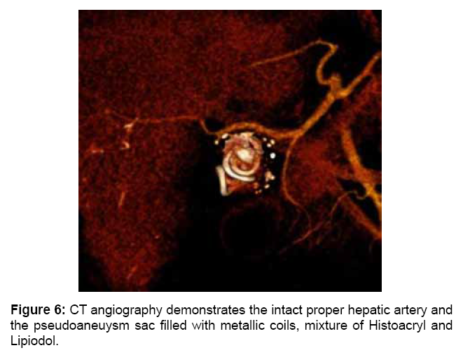 surgery-current-research-angiography