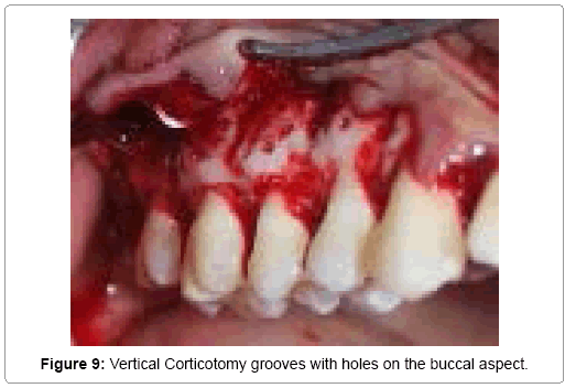 surgery-current-research-corticotomy