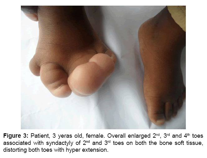 surgery-current-research-syndactyly