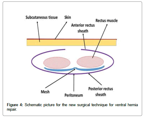 surgery-current-research-technique