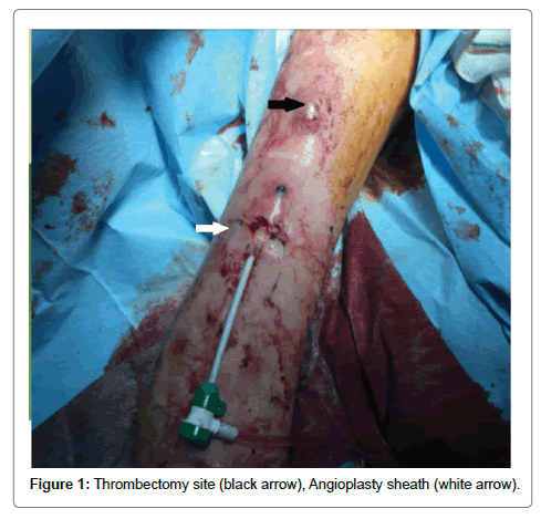 surgery-current-research-thrombectomy