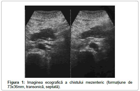 surgery-imaginea-chistului