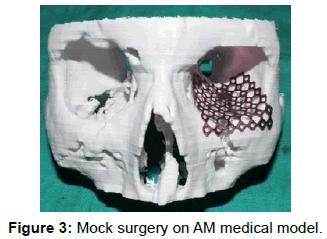 surgery-mock-surgery-medical