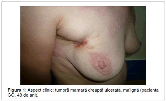 surgery-open-access