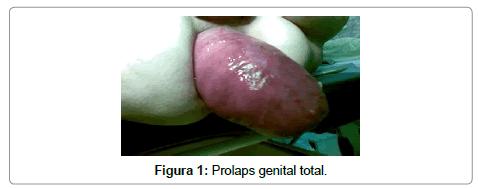 surgery-prolaps-genital