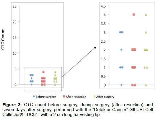 surgery-surgery-detektor-cancer
