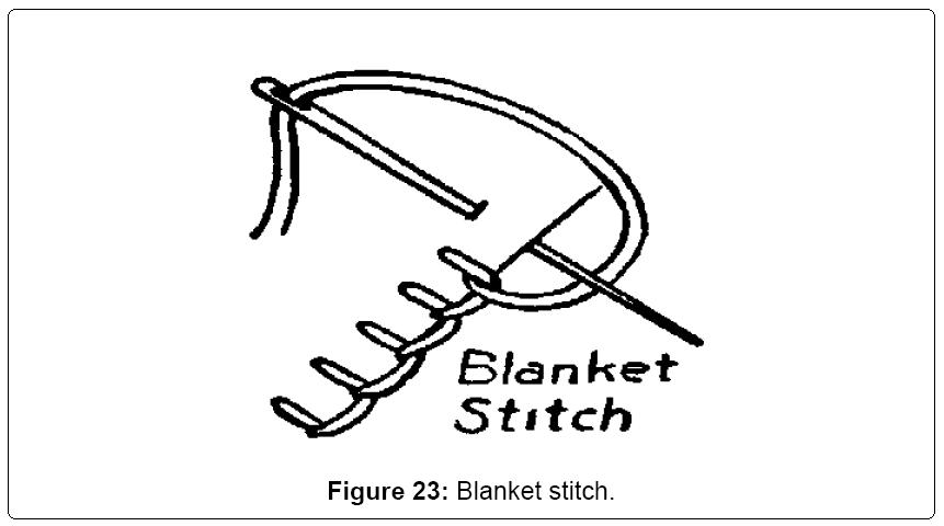 textile-science-Blanket-stitch