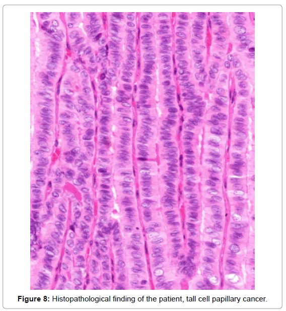 thyroid-disorders-therapy-Histopathological-finding
