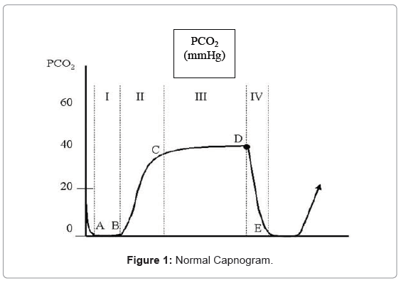 tissue-science-engineering-Normal-Capnogram