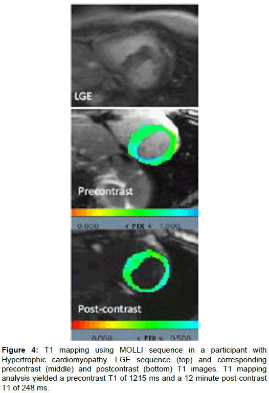 translational-medicine-cardiomyopathy-mapping-yielded