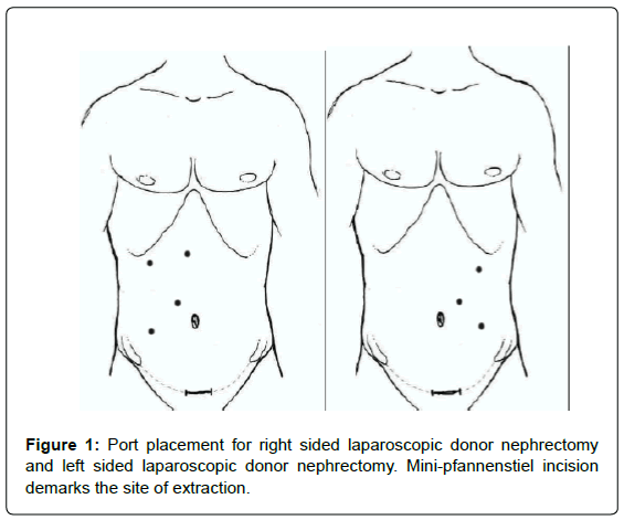 transplant-reports-Port-placement-laparoscopic