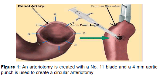 transplantation-technologies-research-arteriotomy-aortic-circular