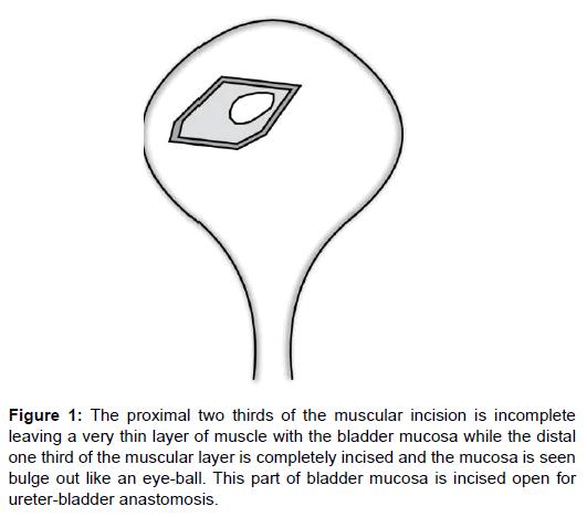 post liver transplant complications pdf