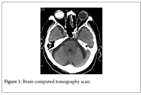 trauma-treatment-Brain-computed-tomography-scan