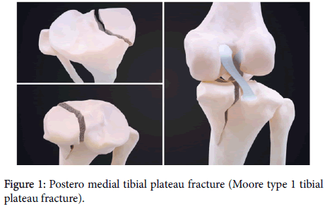 Postero-medial-tibial