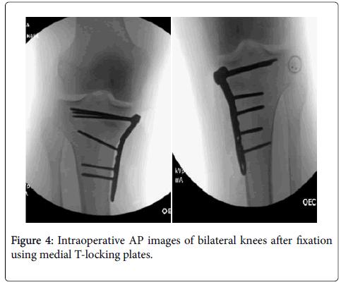 trauma-treatment-medial-T-locking-plates