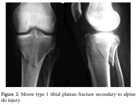 plateau-fracture-secondary