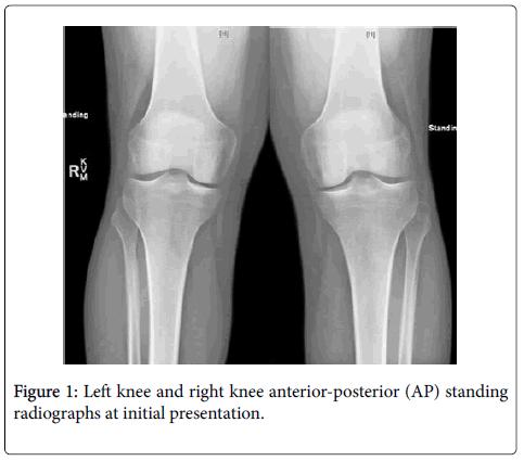 trauma-treatment-right-knee-anterior-posterior