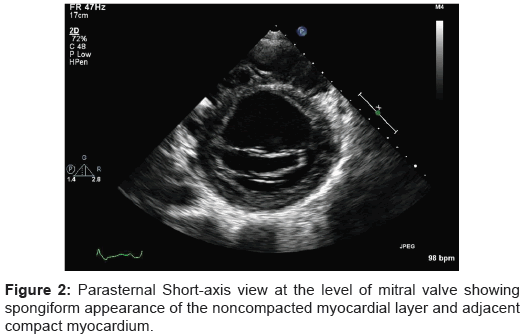 tropical-medicine-surgery-mitral-spongiform-myocardial