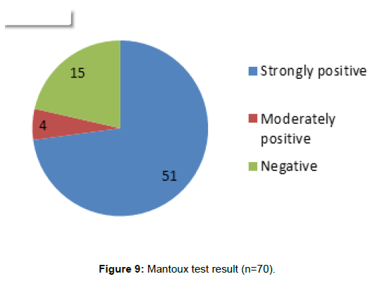 tuberculosis-therapeutics-mantoux-test-result