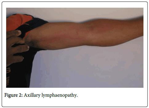 vaccines-vaccination-Axillary-lymphaenopathy