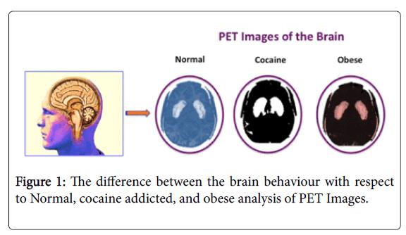 vaccines-vaccination-brain-behaviour