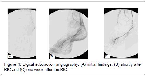 vascular-medicine-surgery-angiography