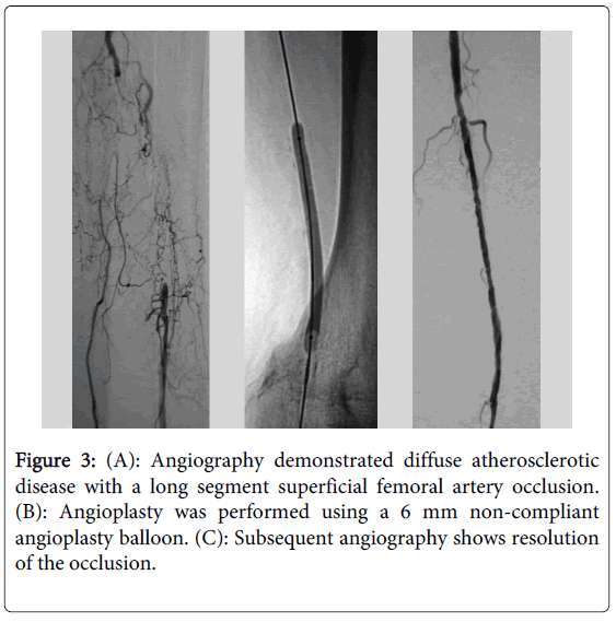 vascular-medicine-surgery-angiography-demonstrated