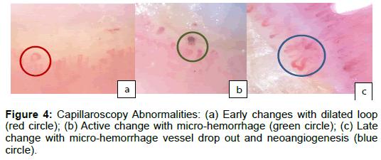 vascular-medicine-surgery-capillaroscopy-dilated-hemorrhage
