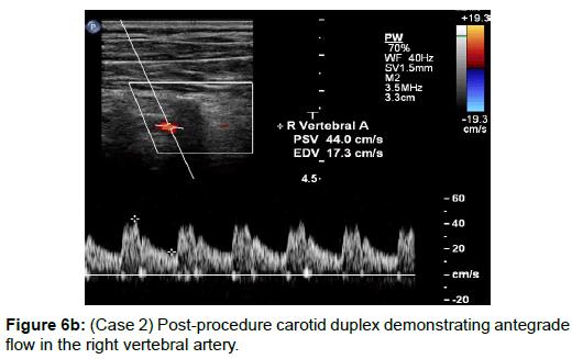 vascular-medicine-surgery-carotid-duplex-antegrade