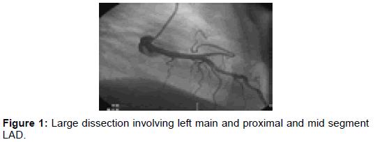 vascular-medicine-surgery-dissection-proximal-segment