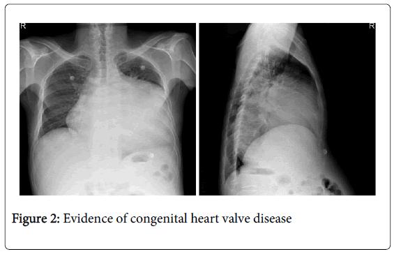 vascular-medicine-surgery-evidence-congenital-heart