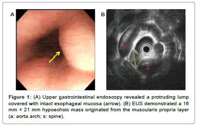vascular-medicine-surgery-gastrointestinal-endoscopy