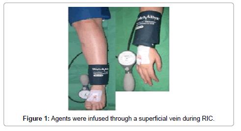 vascular-medicine-surgery-infused