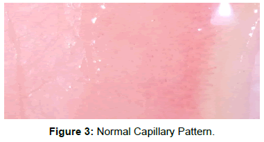 vascular-medicine-surgery-normal-capillary-pattern