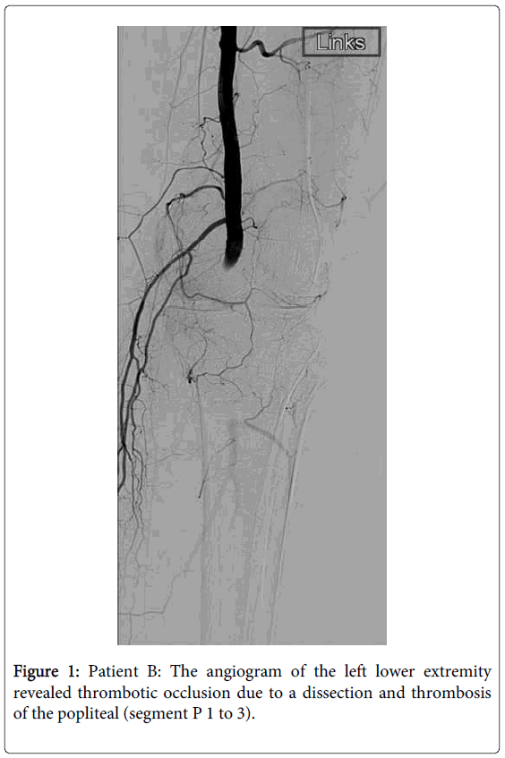 vascular-medicine-surgery-patient-the-angiogram