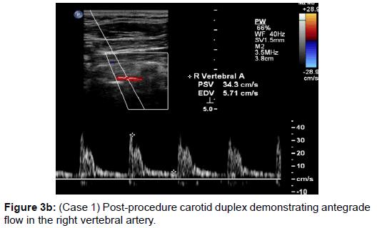 vascular-medicine-surgery-procedure-carotid-duplex