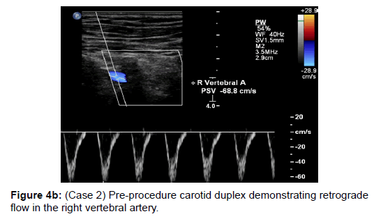 vascular-medicine-surgery-procedure-retrograde-vertebral