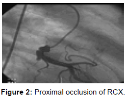 vascular-medicine-surgery-proximal-occlusion